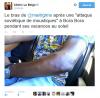Le bras de Maitre Gims après une attaque de moustiques! Difool vient d'en parler... Aiii Aiii