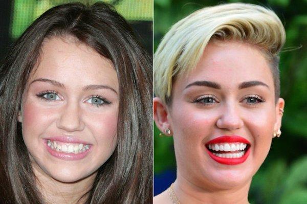 8 photos des dents de stars avant et après une bonne chirurgie dentaire !