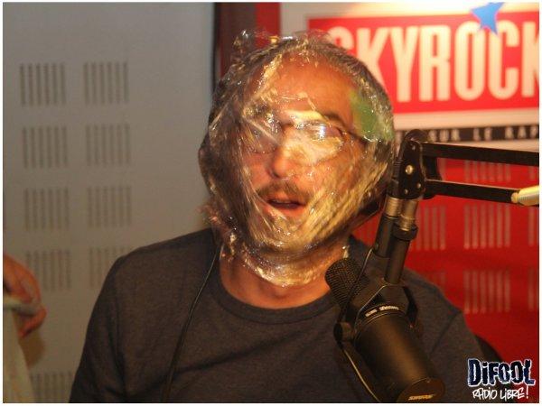 Bo goss Romano avec du Alfapac sur le visage !!!!