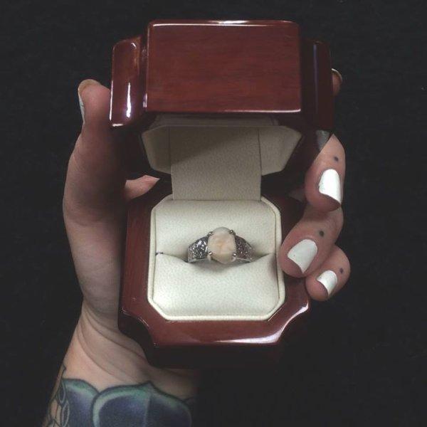 Il la demande en mariage avec une bague ornée de sa dent de sagesse !