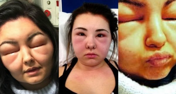 son visage a tripl de volume suite une raction allergique une coloration - Allergie Coloration Cheveux