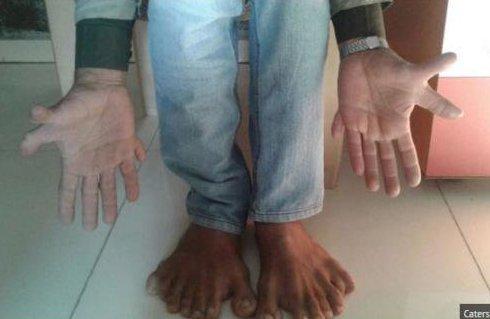 """L'""""homme carpe"""" détient un bien étrange record du monde: il a 28 doigts !"""