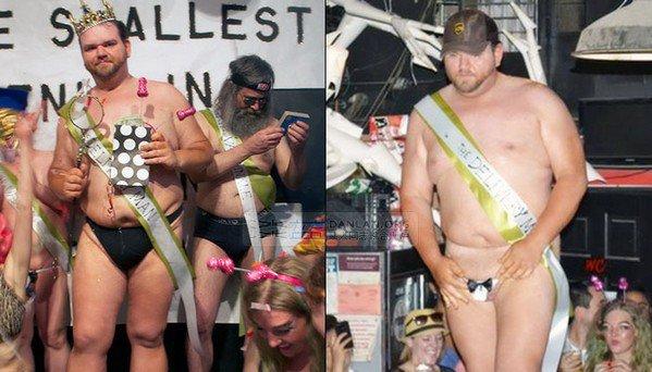 Nicholas Gilronan remporte le concours de l'Homme au plus petit pénis du monde !