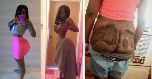 PHOTOS - Les implants fessiers d'une femme explosent en pleine séance !