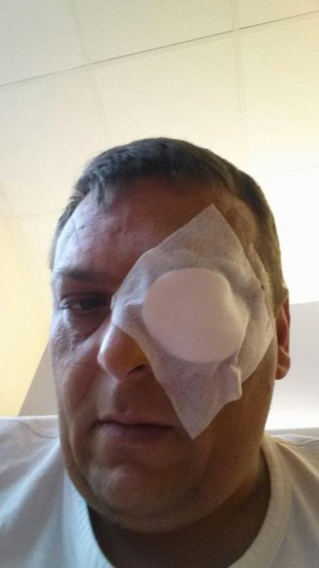 Encore opéré l oeil