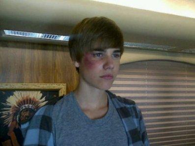 Justin Bieber Revient En Février Dans Les Experts À Las Vegas