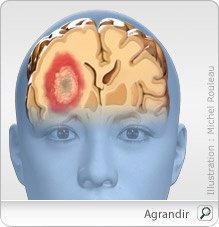 voici la tumeur cerebral que je presente