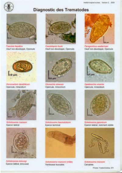 Test de dianostique rapide des vers intestinaux dans les - Vers dans les cerises dangereux ...