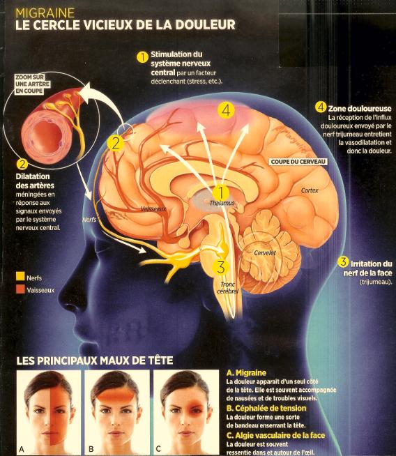 Les principaux maux de tête: migraine, céphalée de tension, algie vasculaire de la face.