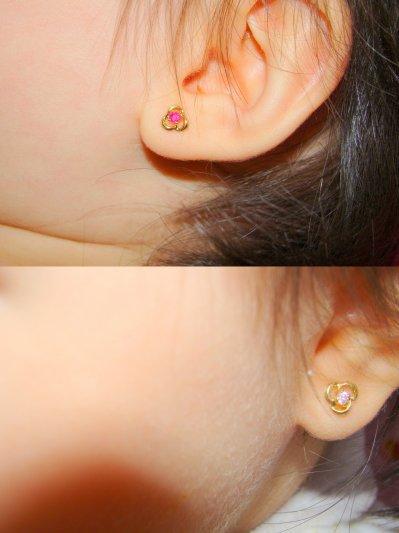 boucle d'oreille prothese