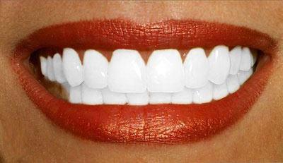 Des conseils pour des dents blanche? Une bone haleine?