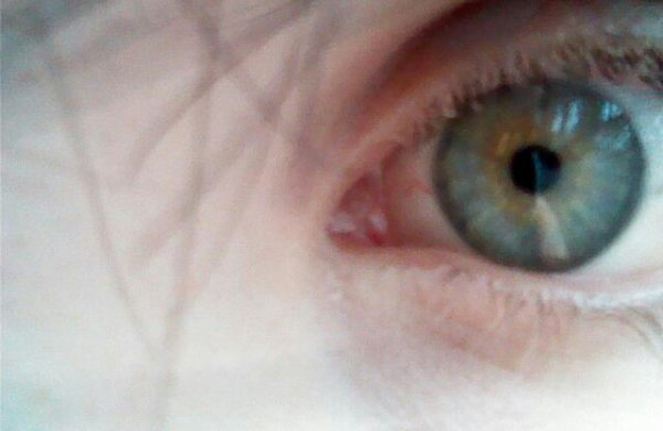 Mes yeux :3