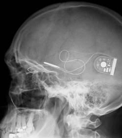 Un ½il bionique restaure une partie de la vision à des aveugles