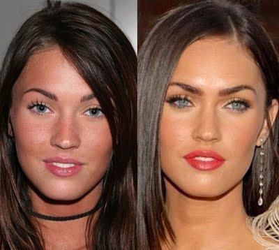 Mégan avant et après sa chirurgie du visage