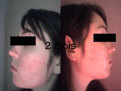Blog de stop-acne - Blog de stop-acne - Skyrock.com