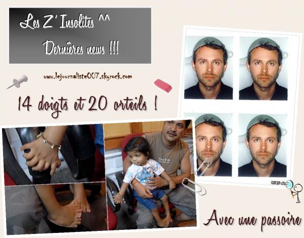 A 1 an, il a 14 doigts et 20 orteils ! - 18/08/2011