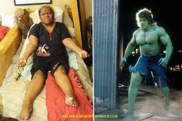 INFOS/INSOLITE : Malade, elle se transforme en incroyable Hulk