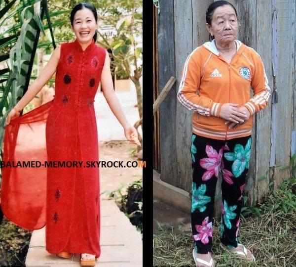 INFO-INSOLITE : Nguyen Thi Phuong la fille qui vieillit de 50 ans en quelques jours (vidéo)