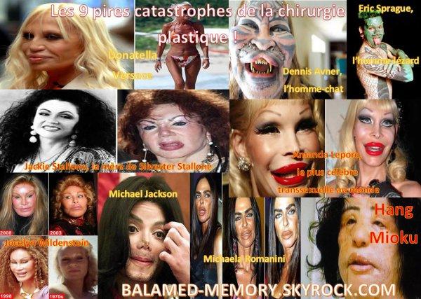 BUZZ : Les 9 pires catastrophes de la chirurgie plastique !