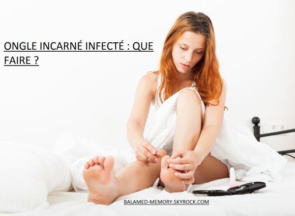 BIEN-ETRE & BEAUTÉ : Ongle incarné infecté : que faire ?