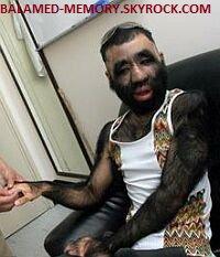 LES RECORDS LES PLUS INCROYABLES : L'homme le plus poilu du monde