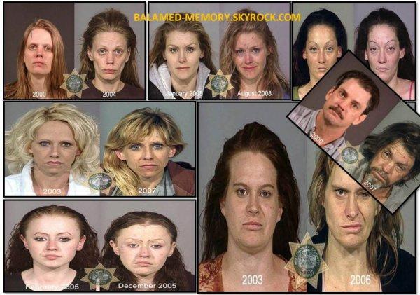 BUZZ : 7 photos de personnes avant et après qu'elles soient toxicomanes !
