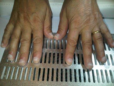 Repose complète sur ongles rongés