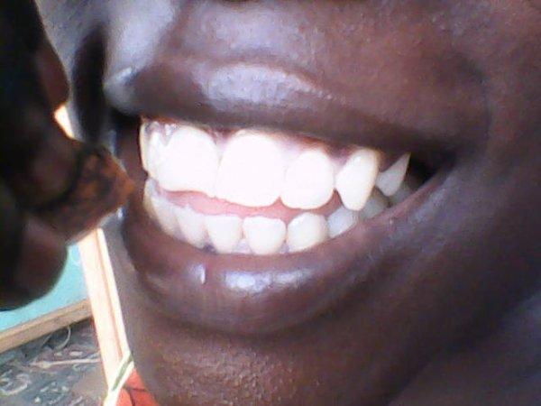 a qui cse belles dents ? a moi biensurrrrrrrrrrrrrrrrr!!!!!!!!