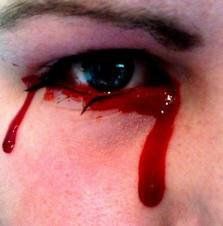 Les larmes de sang