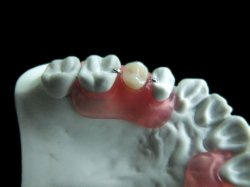 A new and revolutionary dental restoration product