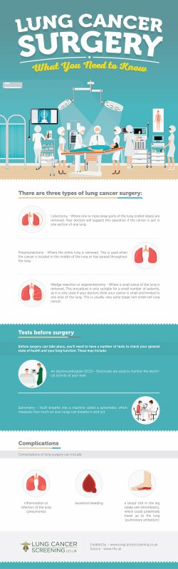Lung Cancer Surgery - What You Need to Know