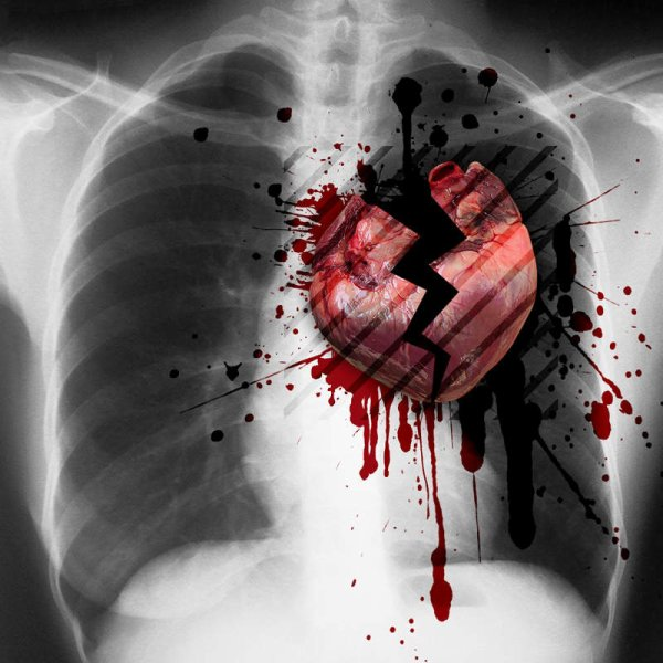 Broken heart...