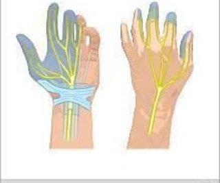 Le syndrome du canal carpien se manifeste par des engourdissements et des fourmillements dans les doigts, et par une perte de force musculaire dans le poignet et la main touchés. Les symptômes résultent de la compression du nerf médian au poignet
