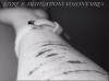 Livre I: Mutilations Volontaires