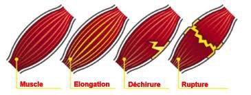 different typer de blessure