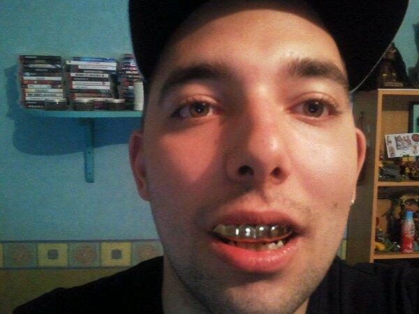 moi avec les dents de joey starr