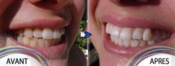 Comparatifs des effets du blanchiment des dents