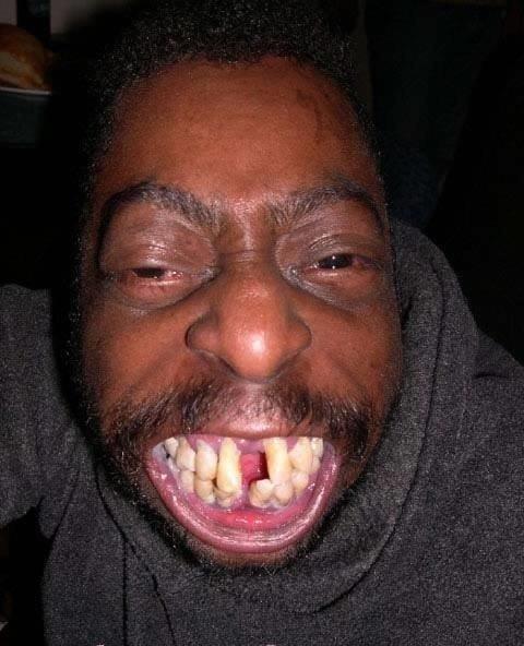 dent pourrie es mieux   ke  bouche  vide