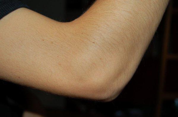 [Aide Anatomie]Les os du bras!