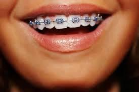 Appareil dentaire c'est fini ! :D