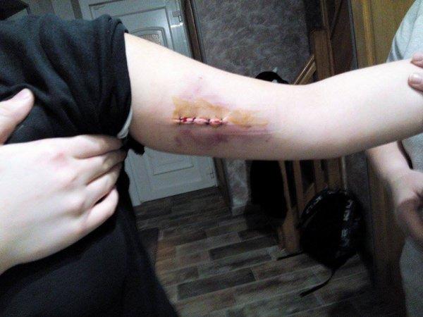 operation du bras :(