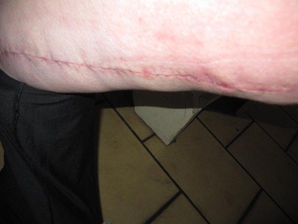 évolution de mes cicatrices de mes cuisses !!!!