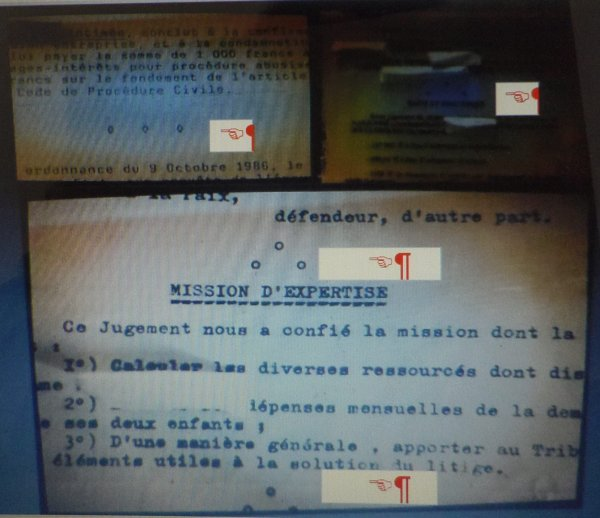 Les erreurs médicales se démocratisent en France ...Malgré le retard par rapport aux Usa etc