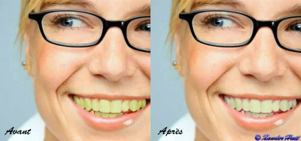 Tutoriel Blanchir Des Dents Avec Photoshop CS6 Extended 