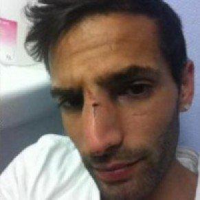 Nantes Le jeune chanteur gay Samy Messaoud victime d'une agression homophobe