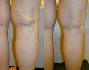 Intro And Overview Of Spider Vein Treatment
