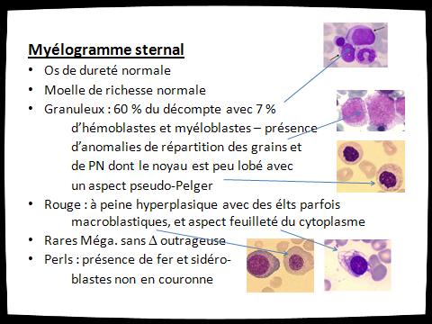 Travaux dirigés Hématologie/3éme ED – Anémies DCEM1-L3 - A ...