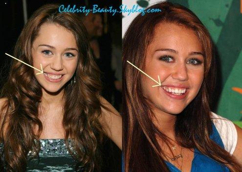 Miley Cyrus Un Sourire De Star Le Blog Des Stars Et La