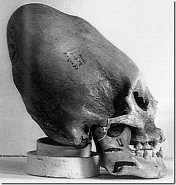 # Article 4 : Crâne bien étrange