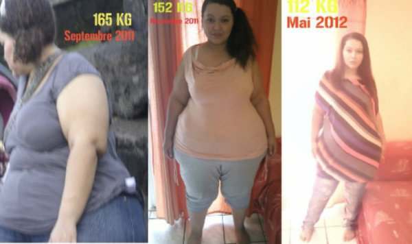 De 165 kg a 75 kg ! Ma Sleeve Gastrectomie en 18 mois . Before/After .